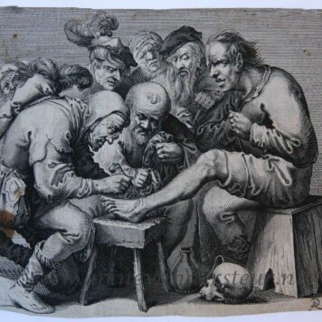 [Antique print, etching] Foot operation/Voet operatie.